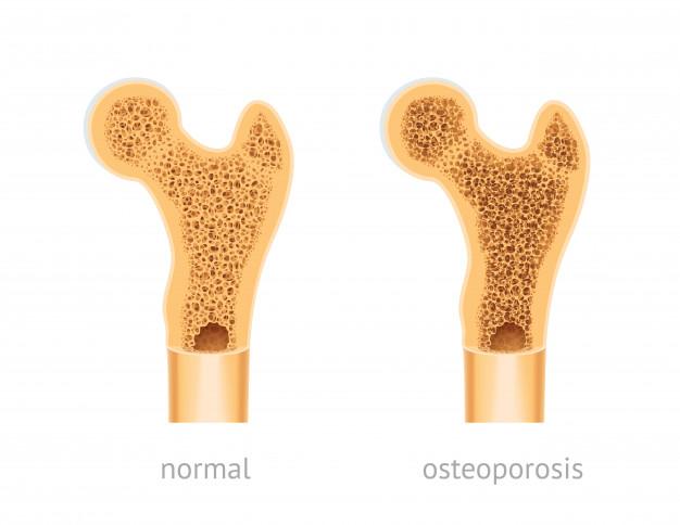Osteoporosi: come prevenirla con il calcolo della densità ossea