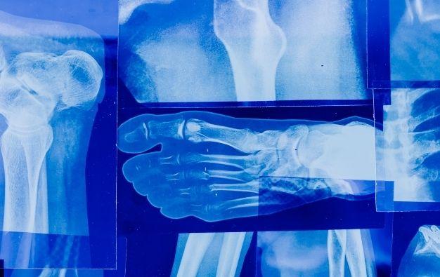 La radiografia digitale: l'importanza di ottenere immagini accurate per le diagnosi dei pazienti